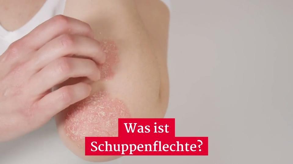 Schuppenflechte: Neue Psoriasis-Therapie dank Forschern aus Erlangen - Enzymmangel als Auslöser