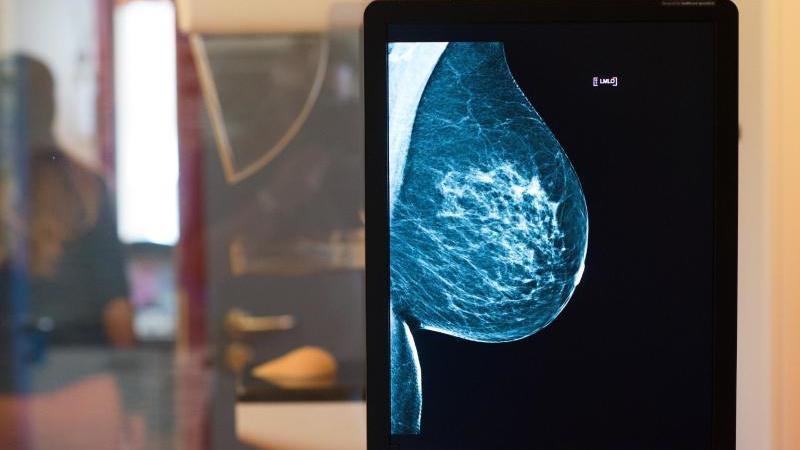 Mammographie-Screening zeigt gesunde Brust