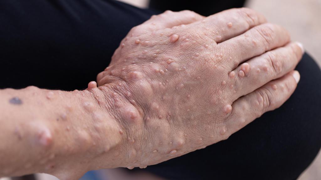 Symptom von Neurofibromatose: Eine Hand mit vielen kleinen Geschwülsten unter der Haut