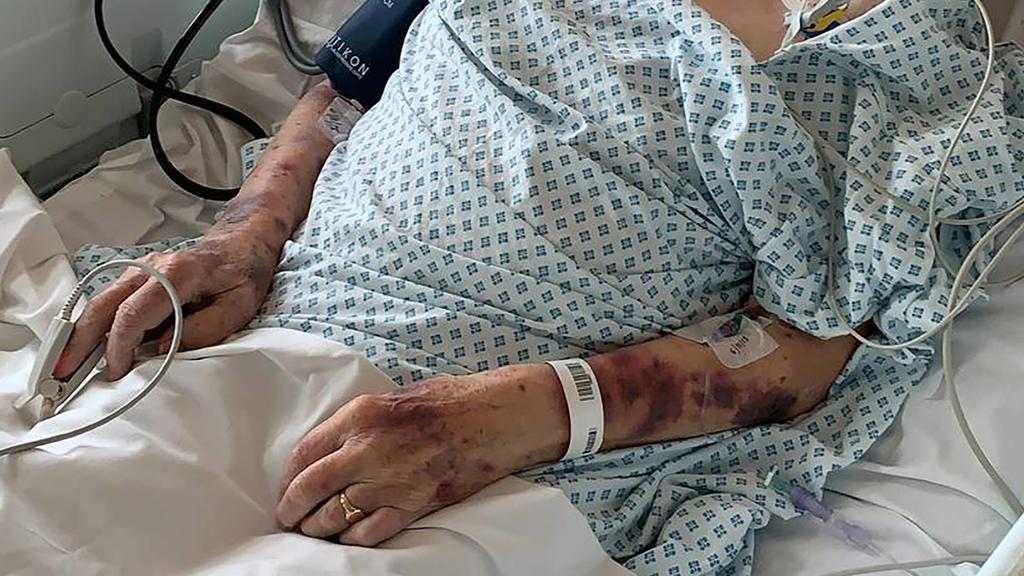 London 98-Jähriger überfallen und geschlagen