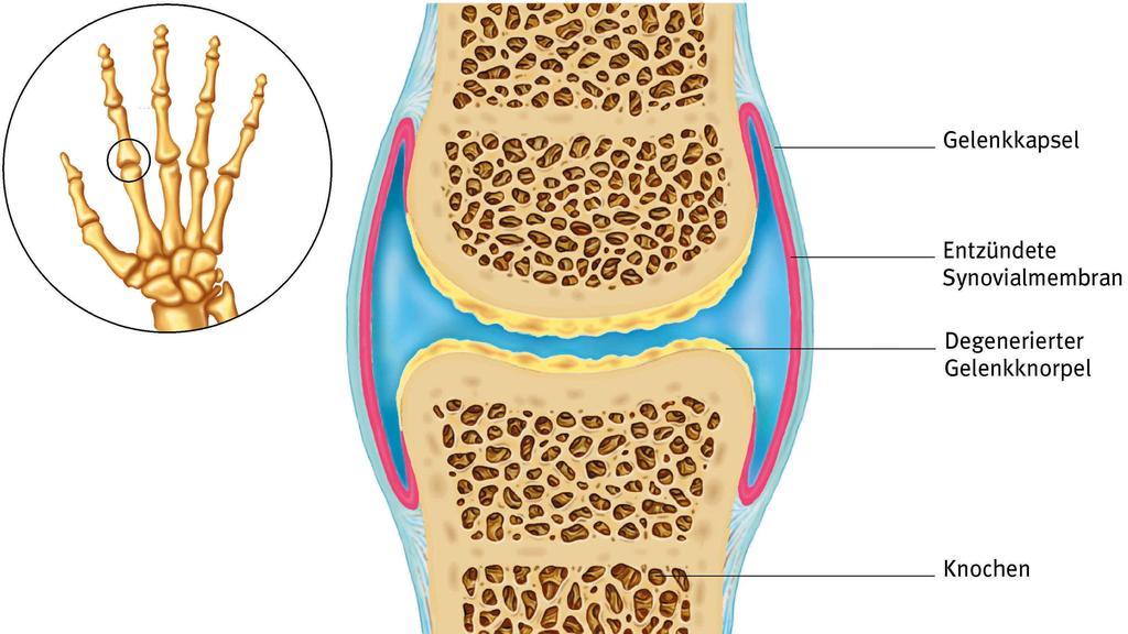 Gesundheitslexikon: Die Illustration zeigt eine arthritisch erkranktes Gelenk.