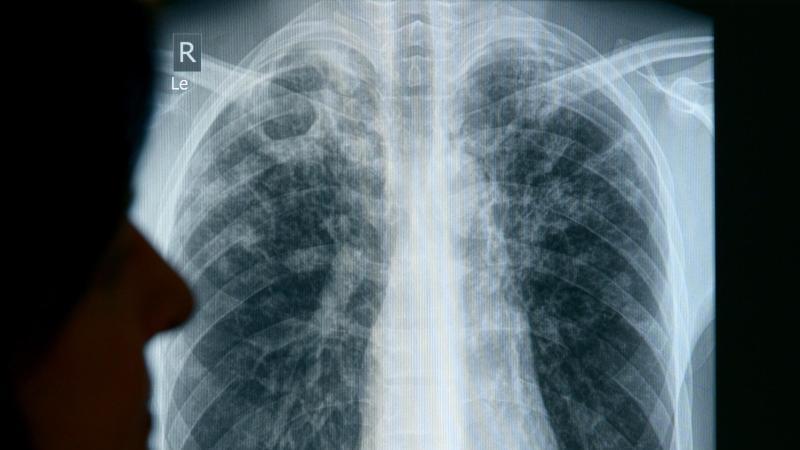 Die Röntgenaufnahme eines erkrankten Patienten.