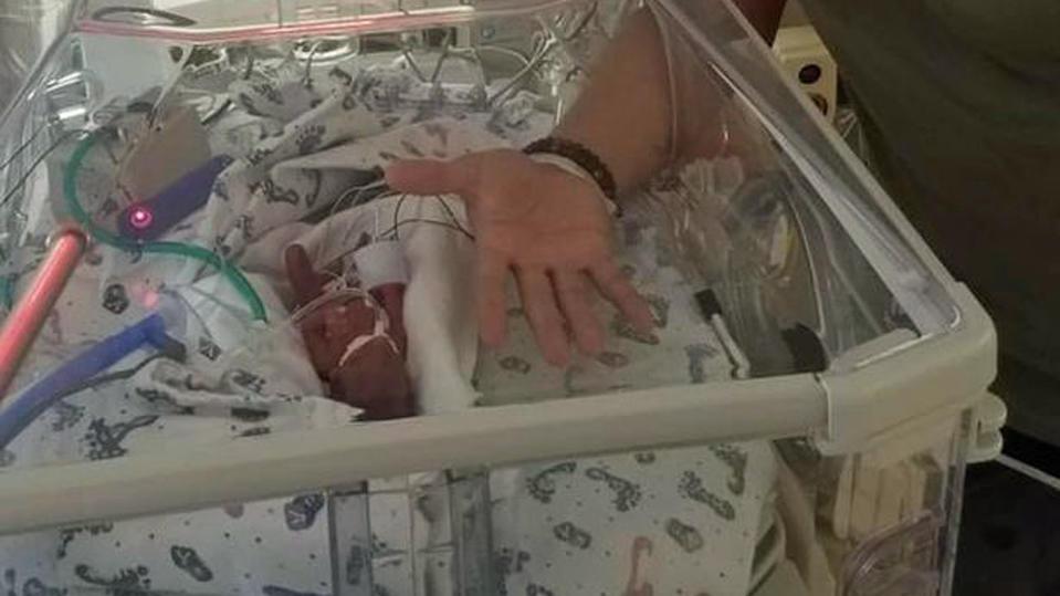 US-Amerikanerin brachte ihr Baby im 5. Monat zur Welt