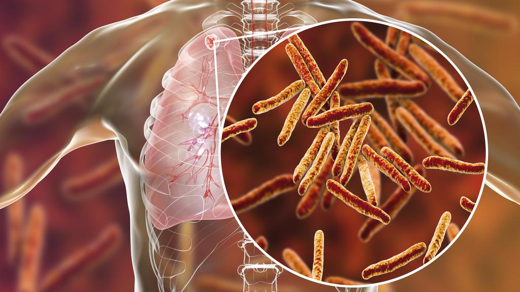 Mycobacterium-Tuberkulose-Bakterien in der Lunge