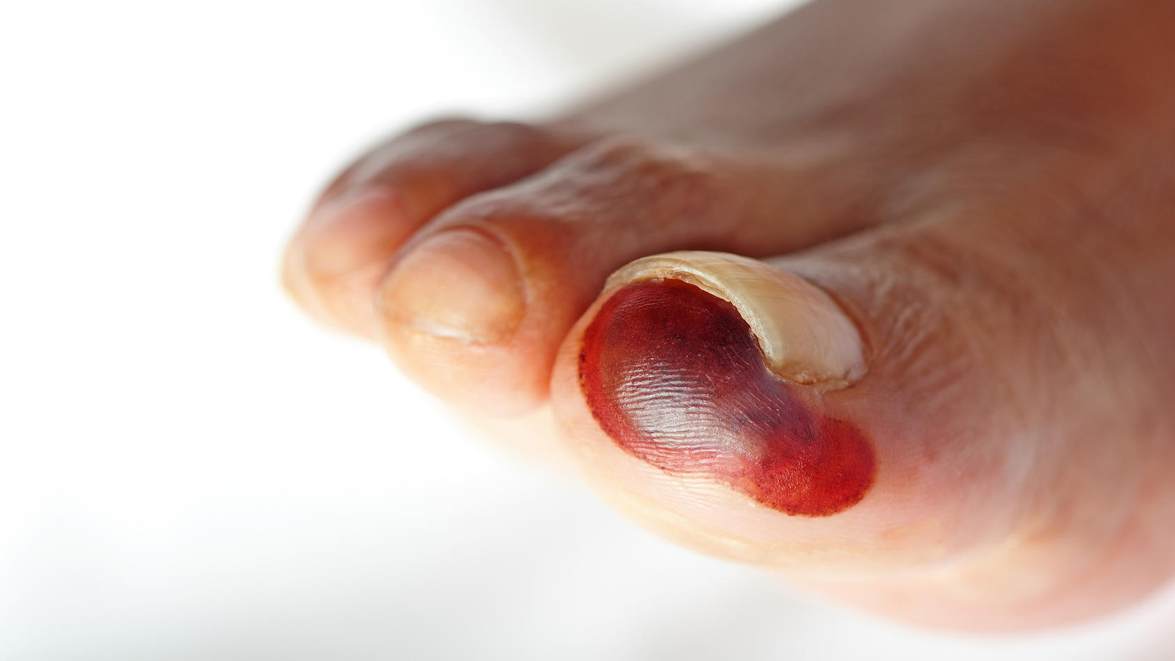 Die Gangrän ist in der Regel ein deutlich begrenzter und schlecht heilender Gewebeschaden.