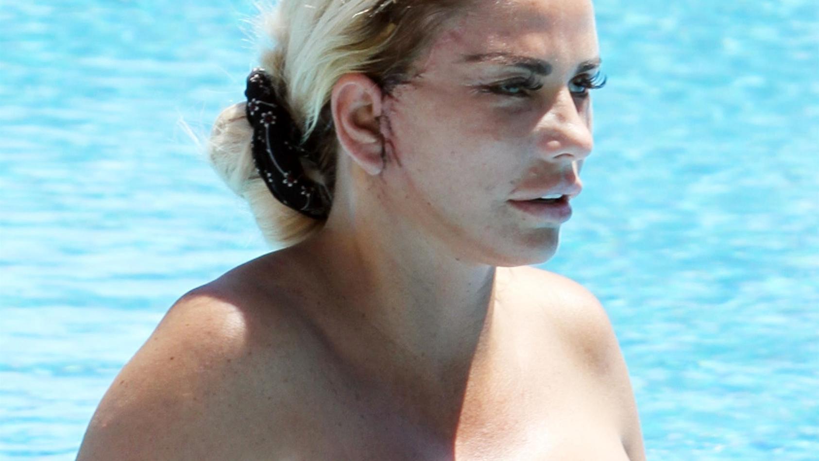 Katie Price (41) soll nach zu vielen OPs das Gefühl im Gesicht verloren haben.