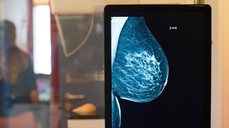 Frauen, die in den Wechseljahren eine Hormontherapie durchführen, sind laut einer Studie einem höheren Brustkrebsrisiko ausgesetzt. Foto: Klaus-Dietmar Gabbert