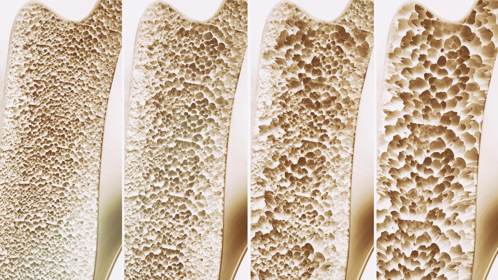 Als Osteoporose bezeichnet man eine Erkrankung des Skeletts, bei der die Knochendichte kontinuierlich abnimmt.