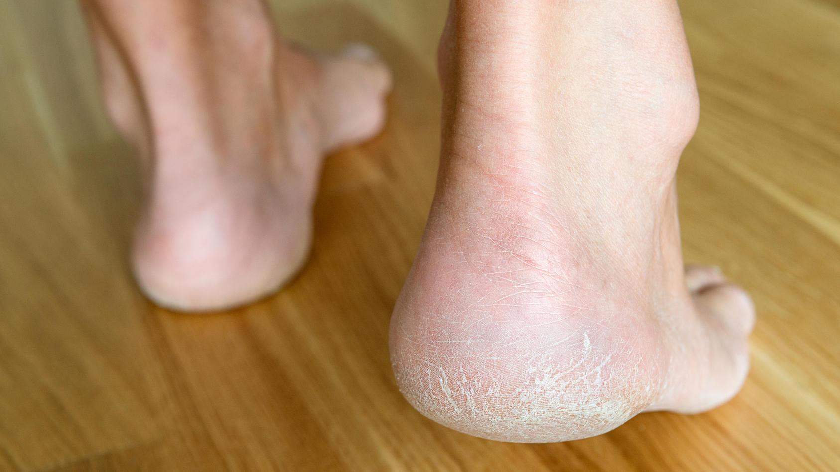 Hornhaut an den Füßen sieht unschön aus und kann zum Problem werden