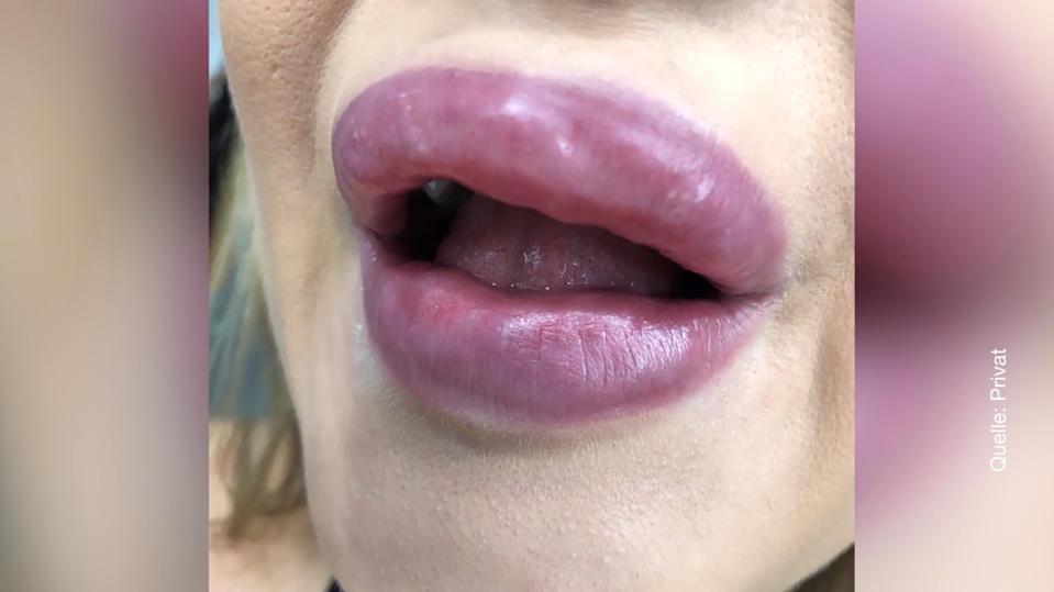 Mehr als zwei Jahre Haft für Duygu Ö. wegen illegal aufgespritzter Lippen