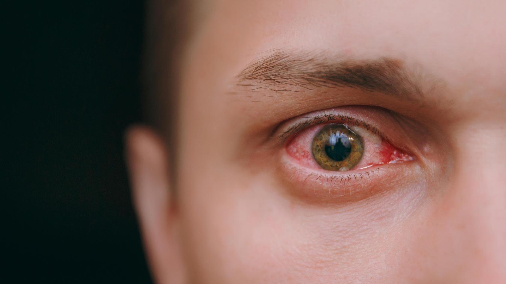 Dringt das Coronavirus über unsere Augen ein? Diese Frage wird von der Forschung diskutiert.