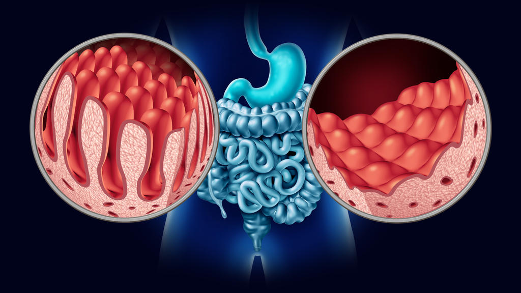 Links die gesunden Darmzotten, rechts das Bild bei Zöliakie mit den abrasierten Darmzotten