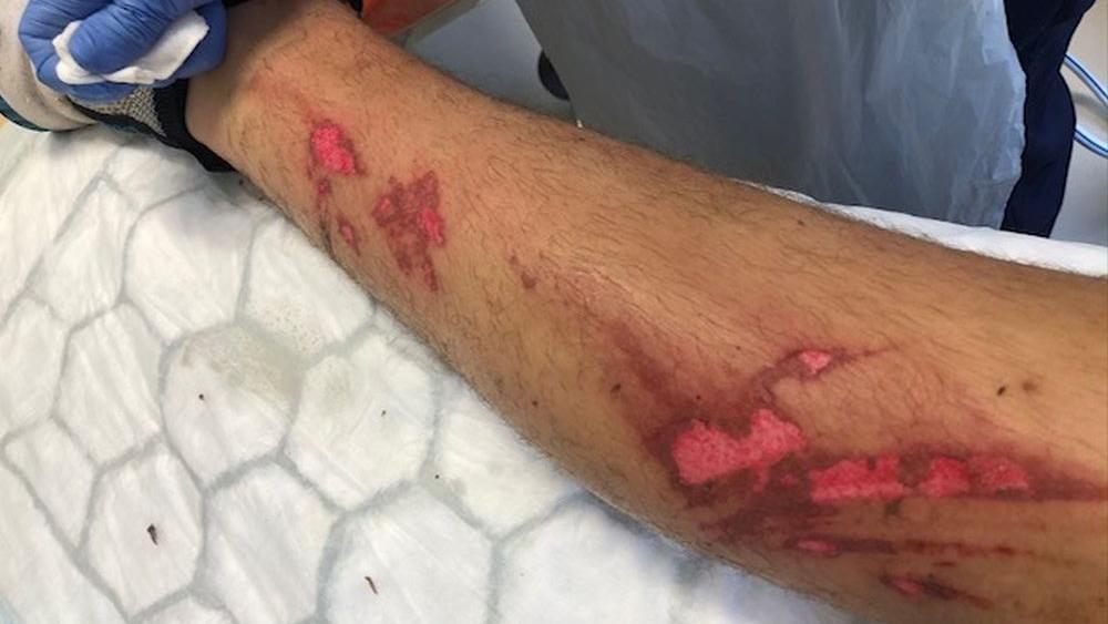 Verbrannte Beine