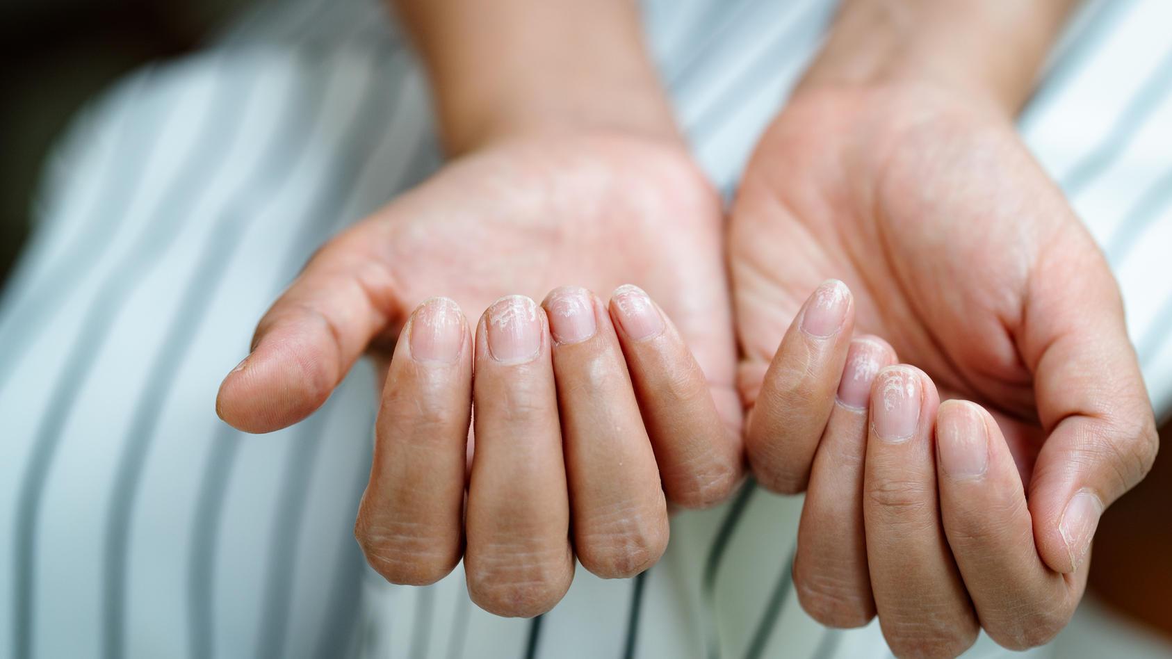 Veränderungen der Fingernagelform können auf eine Erkrankung hindeuten