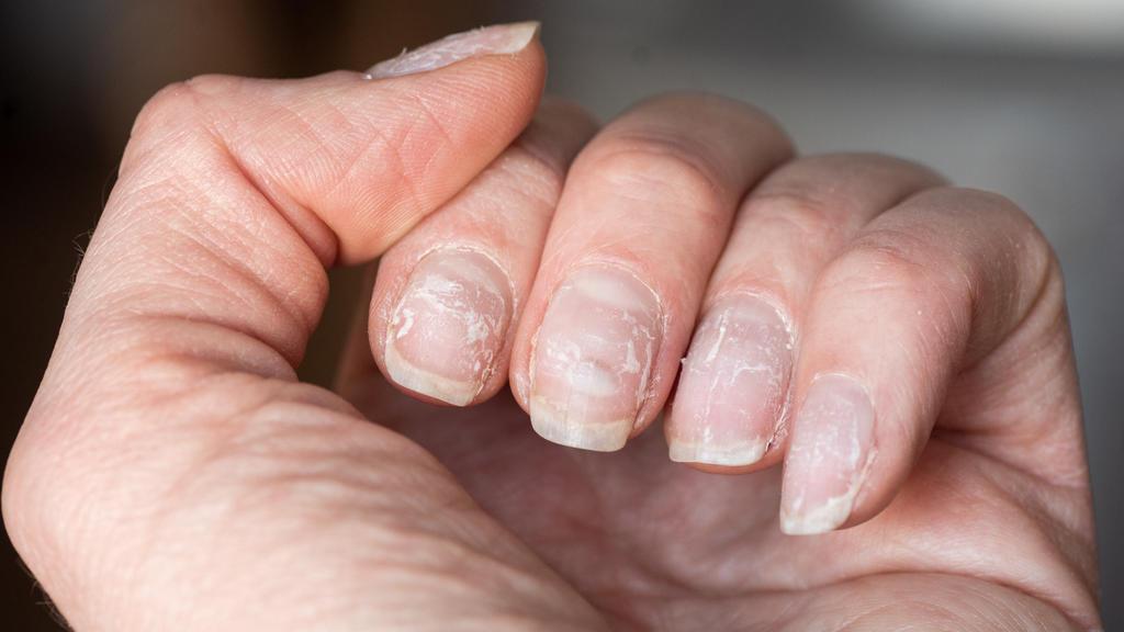 Brüchige Nägel mit weißen Verfärbungen