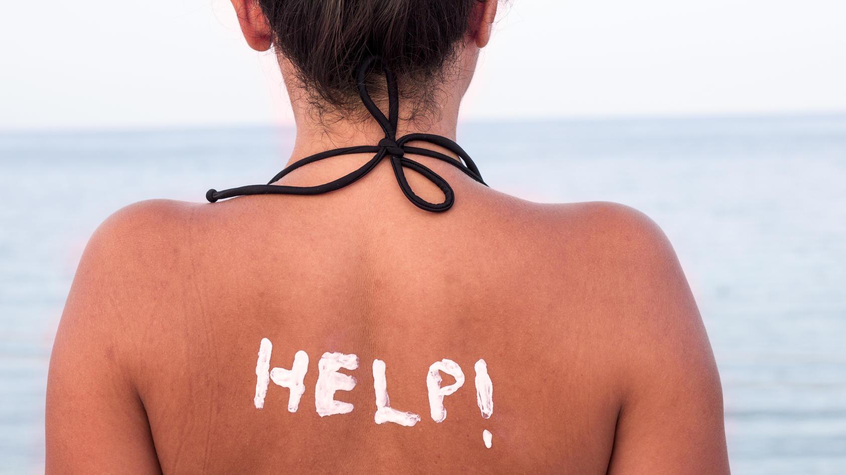 Schlimmer Sonnenbrand: Welche Hausmittel helfen nun?