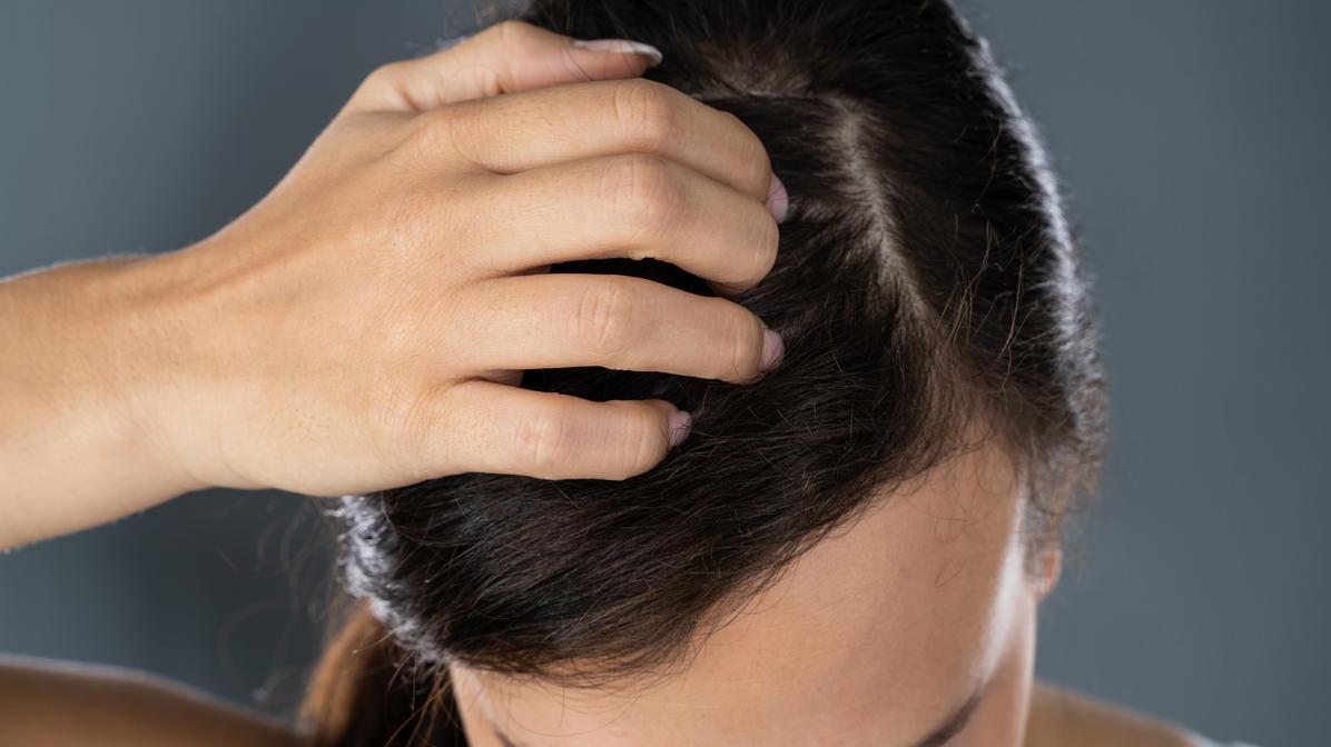 Viele Menschen haben Probleme mit der Kopfhaut, zum Beispiel Juckreiz oder Schuppen.