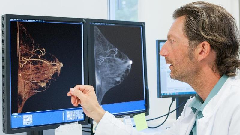 Der Radiologe Karsten Ridder schaut sich die Bilder eines Mamma-CT zur Früherkennung von Brustkrebs an. Foto: MVZ Prof. Dr. Uhlenbrock und Partner/dpa-tmn