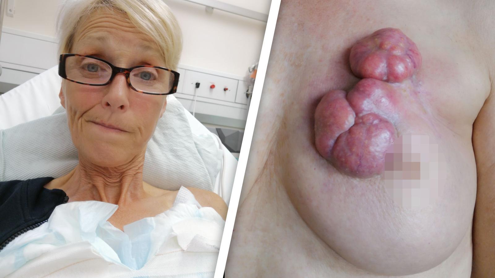 Nina Collins sammelt mit Schockfoto ihrer Tumore Spenden für Behandlung