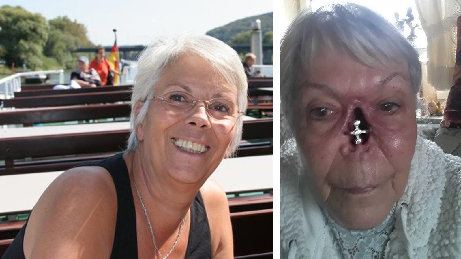 Links sieht man, wie Ulrike vor der Krebs-OP aussah. Das rechte Bild zeigt sie nach dem heftigen Eingriff.