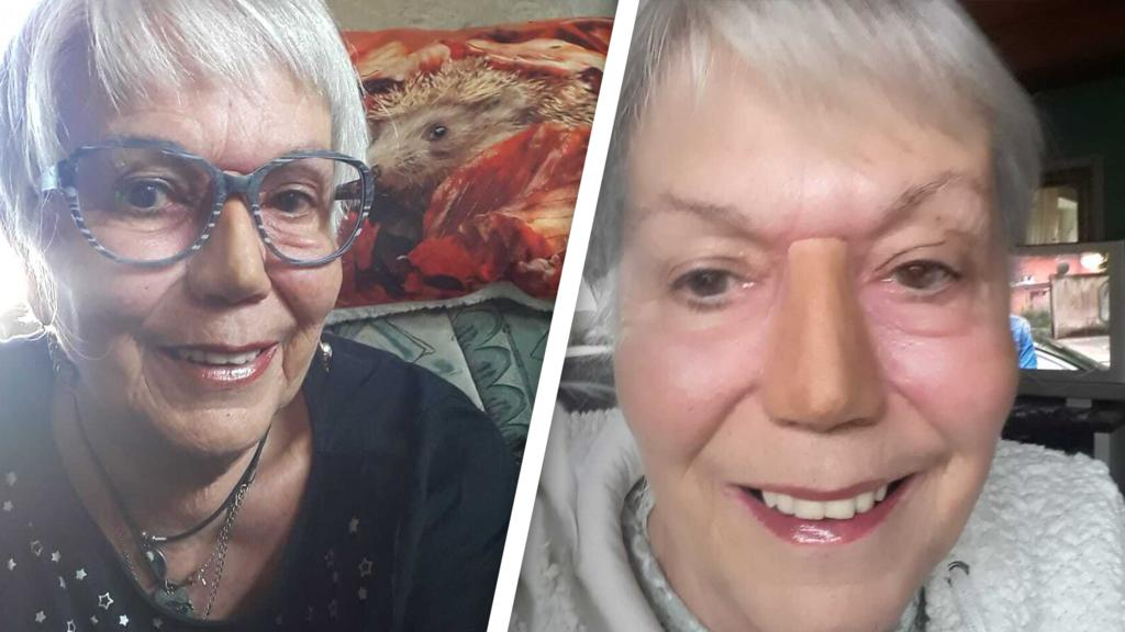Auf dem linken Bild sieht man Ulrike mit ihrer Brille. Auf dem rechten Bild sieht man sie ohne Brille - dort erkennt man die Ränder ihrer künstlichen Nase.