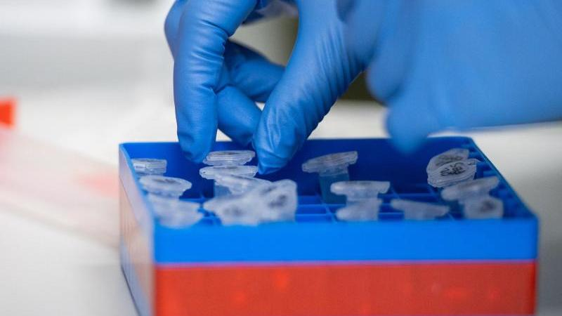Eine Laborantin führt Untersuchungen zum Coronavirus durch. Foto: Christophe Gateau/dpa/Symbolbild