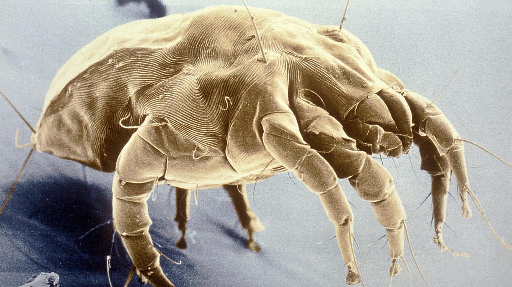 Vieltausendfach vergrößerte, undatierte Mikroskop-Aufnahme einer Hausstaubmilbe (lat.: Dermatophagoides pteronyssinus). Milben, von denen inzwischen über 30000 Arten bekannt sind, leben vor allem im Hausstaub sowie in Matratzen, Polstermöbeln und Tep