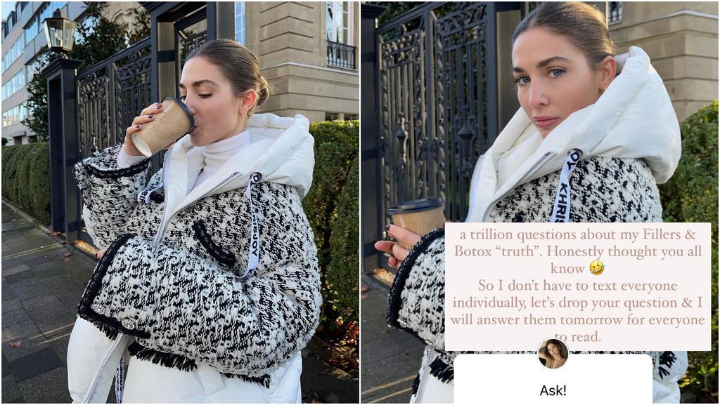 Ann-Kathrin Götze gibt auf Instagram offen zu, dass sie regelmäßig zum Beauty-Doc geht.
