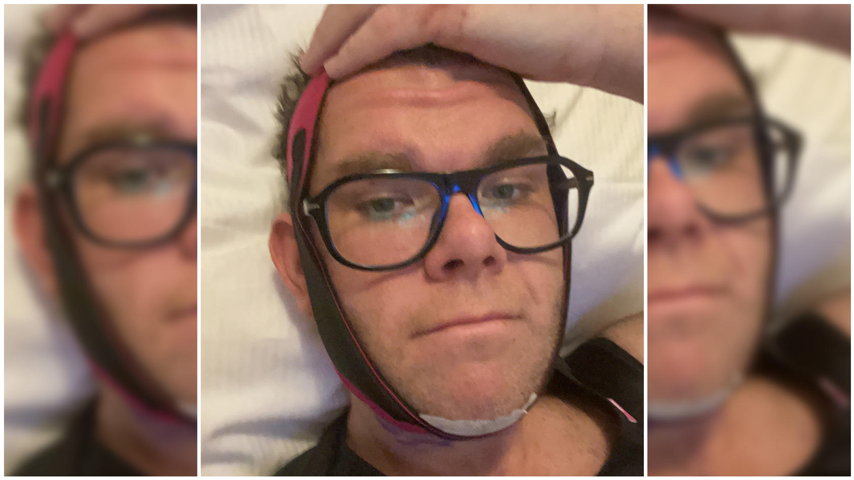 """Dennis Schick hat seine """"Körpertransformation"""" mit einer Reihe von medizinischen Eingriffen beendet."""
