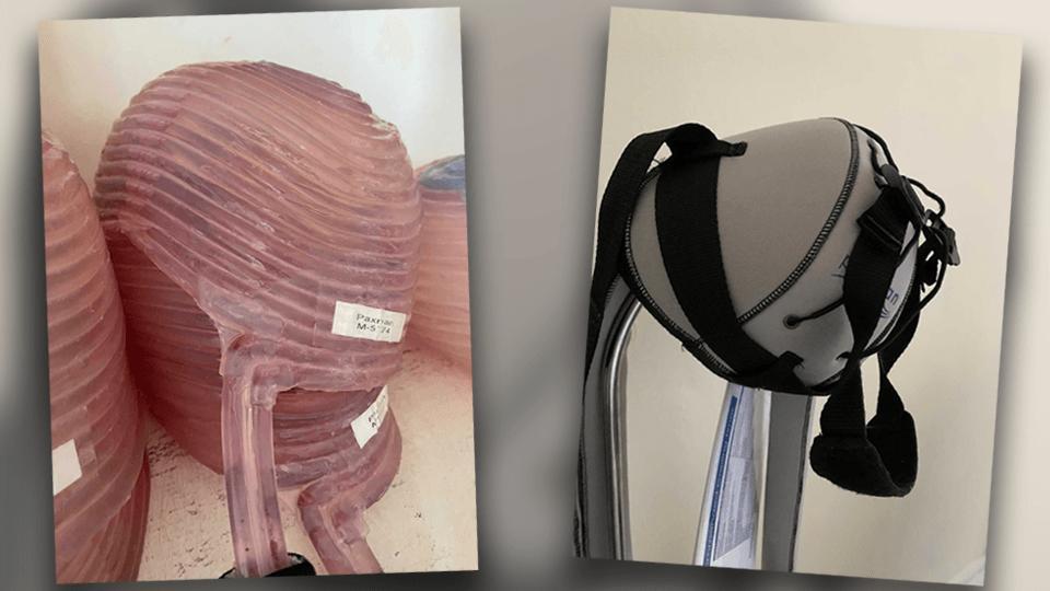 Damit wegen der Chemo-Therapie die Haare nicht ausfallen, trägt Tanja eine Kühl-Kappe und einen Fixierungs-Helm