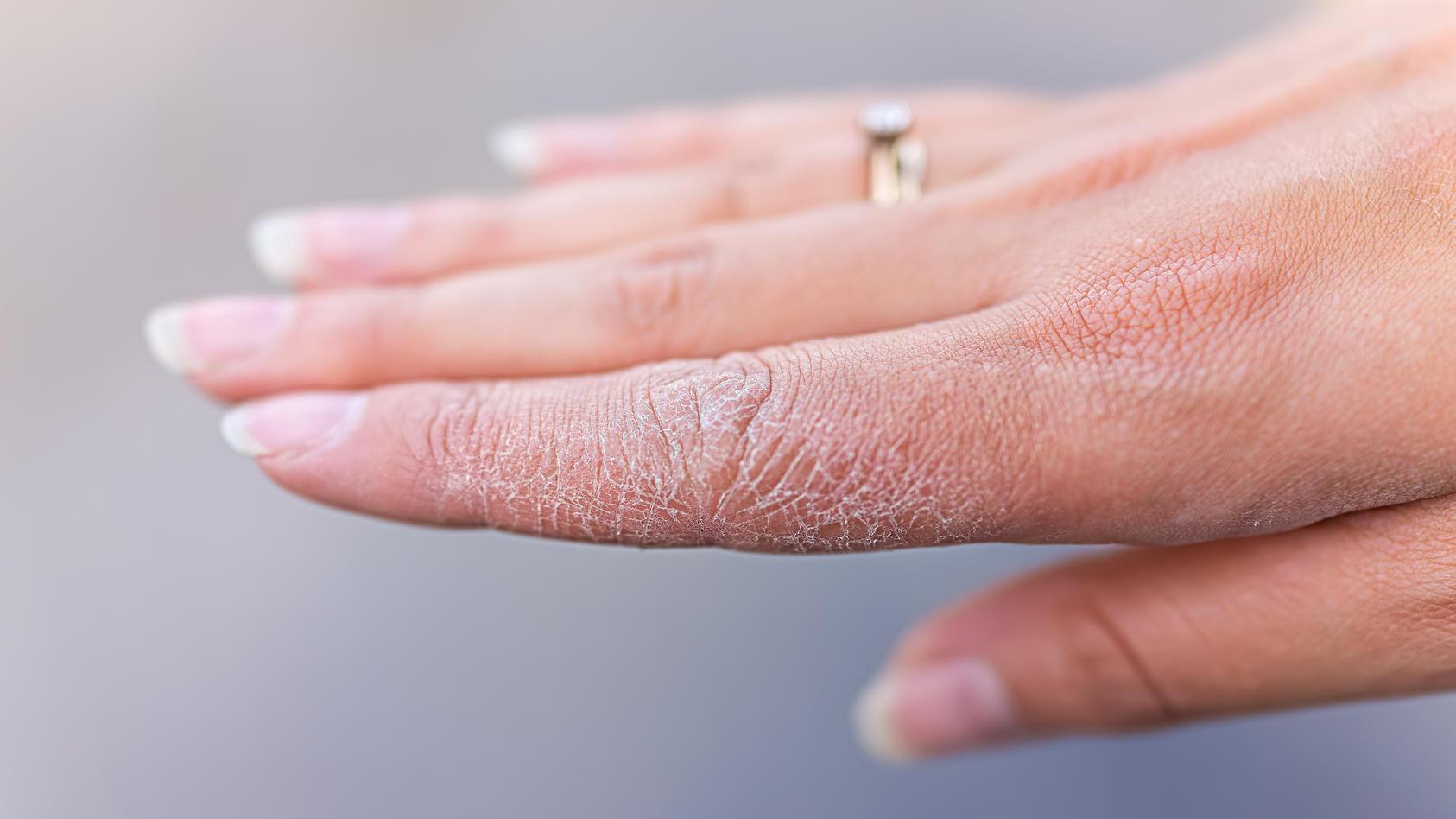 Zu viel Hände waschen führt zu trockener und entzündeter Haut.
