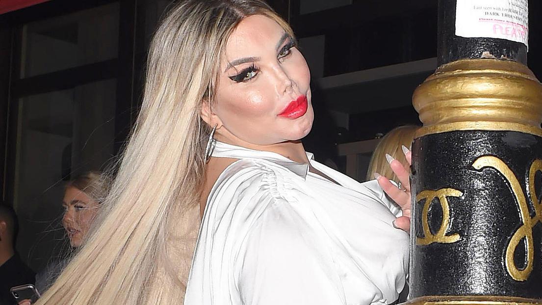 Jessica Alves hat wegen der Einnahme weiblicher Hormone 30 Kilo zugenommen.