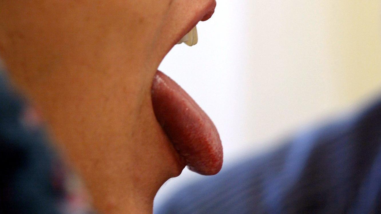Die Zunge sollte öfter gereinigt werden.