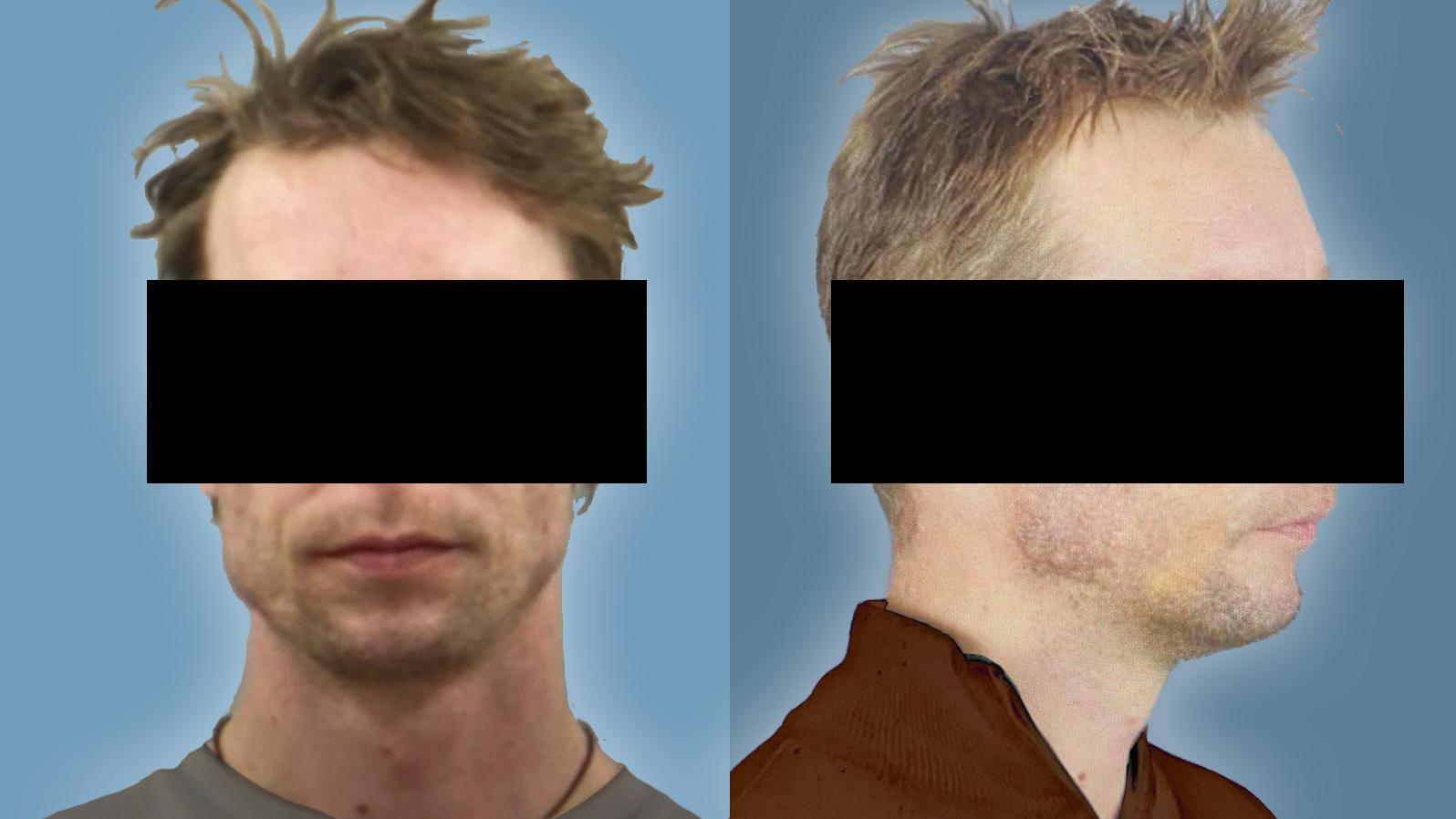 Die Staatsanwaltschaft Braunschweig führt nun drei weitere Verfahren gegen den 44-jährigen Deutschen Christian B.