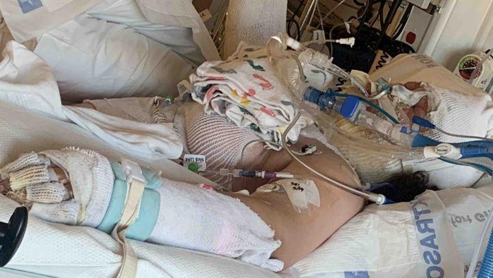 Destini Crane (13) iz Portlanda (SAD) teško je povrijeđena dok je pokušavala imitirati TikTok video.