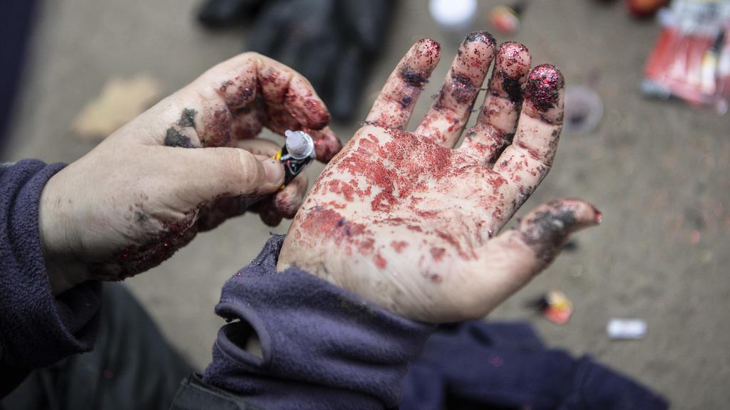 ARCHIV - 29.11.2020, Hessen, Dannenrod: Mit Sekundenkleber und Glitter verschmiert ein Aktivist seine Hände, um für den Fall einer Festnahme eine Fingerabdrucknahme durch die Polizei zu erschweren. (Zu dpa «Kostenbescheide nach Großeinsatz im Dannenr