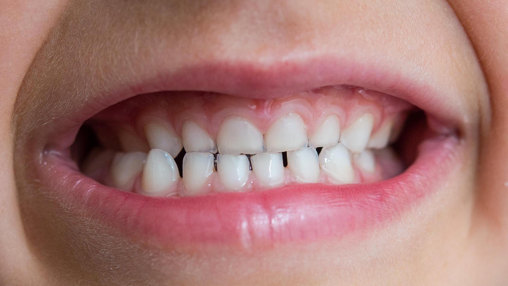 Antibiotika könnten eine Ursache der sogenannten Kreidezähne sein.
