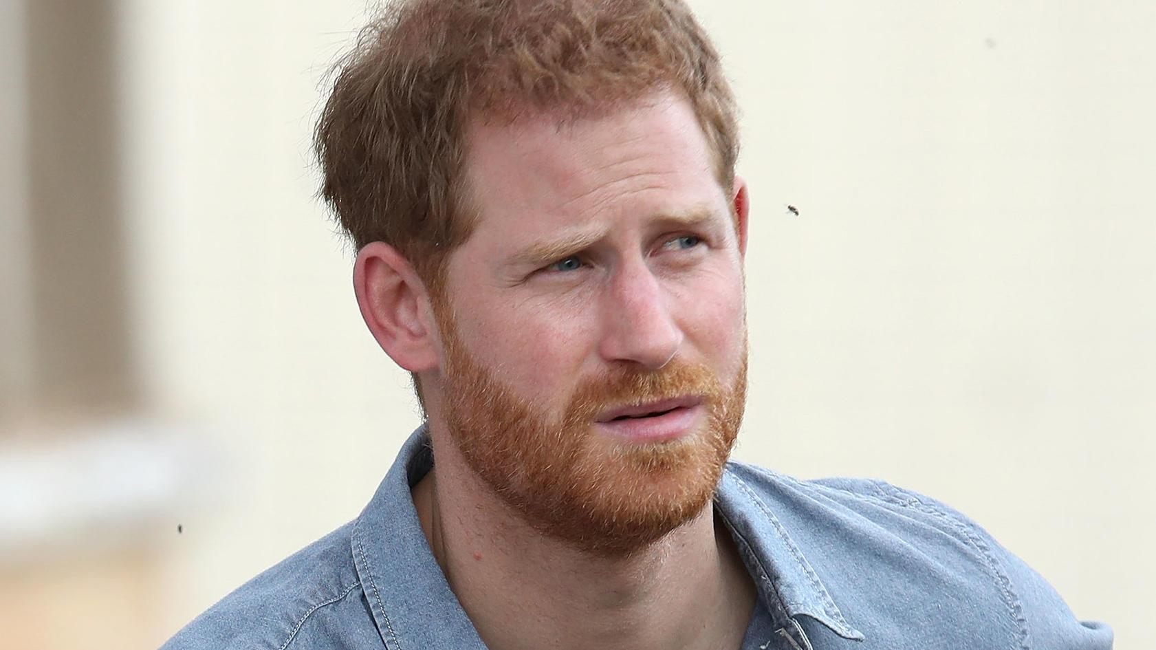 Prinz Harry soll schon in wenigen Jahren haarlos sein.
