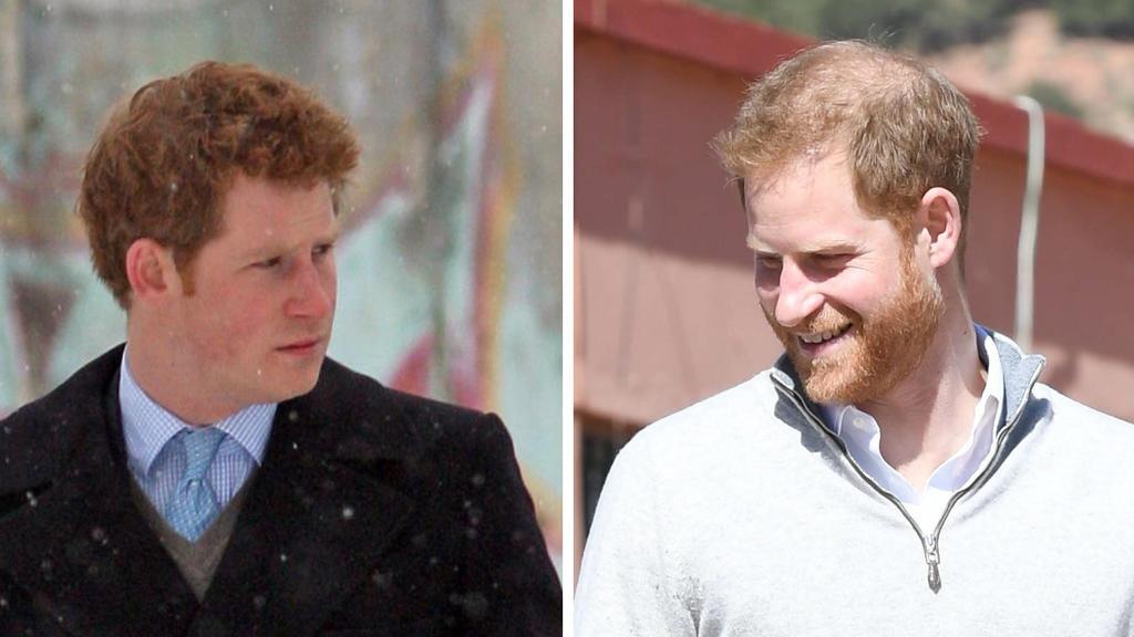 Prinz Harrys Frisur im Wandel der Zeit