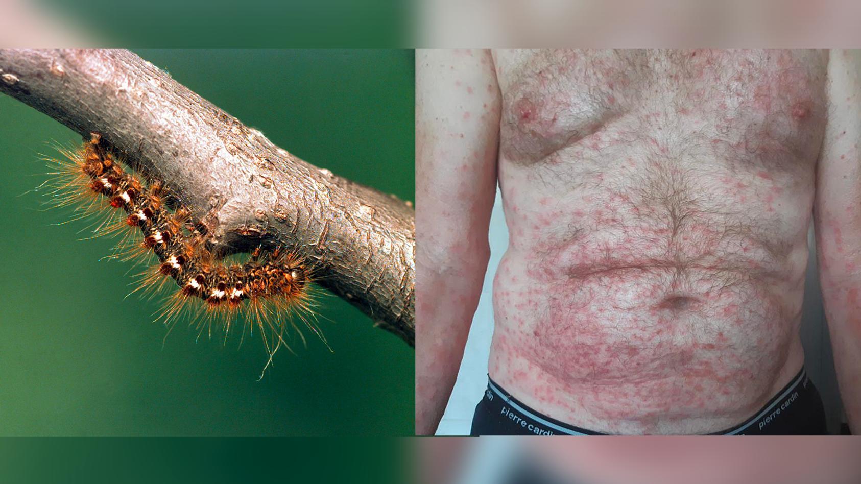 Die Goldafter Raupe kann mit ihren giftigen Härchen solche heftigen allergischen Reaktionen auslösen