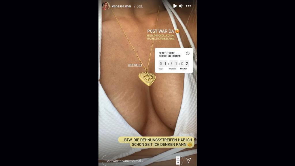 Vanessa Mai macht keinen Hehl daraus, dass ihre Brüste von zarten Rissen bedeckt sind.