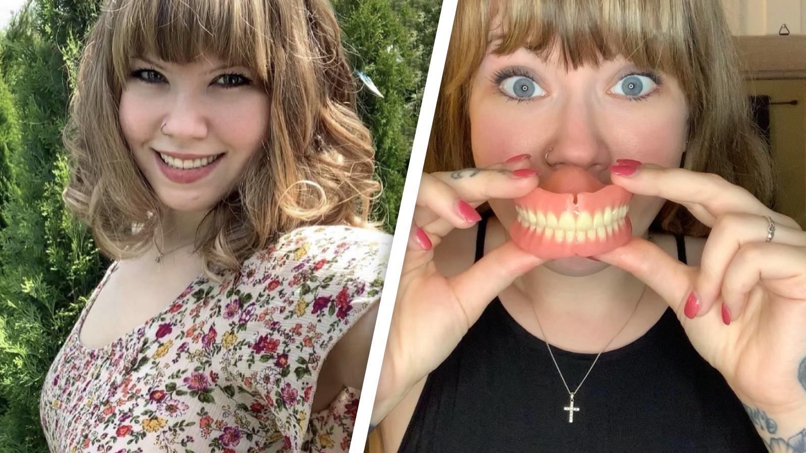 Nach krassem Gewichtsverlust verlor Cathy Blythe ihre Zähne.