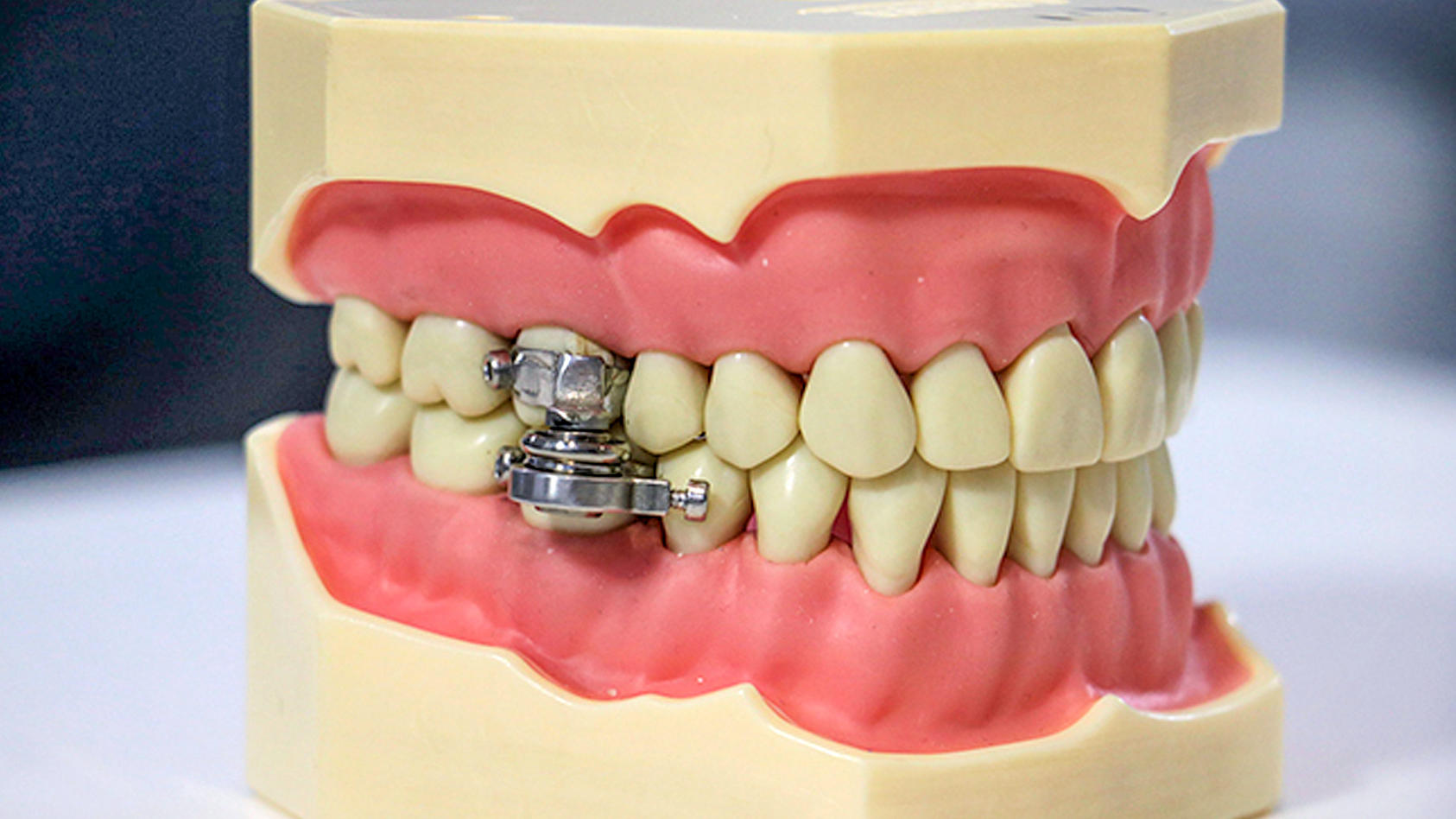 Zwei Magnete an den Backenzähnen sorgen dafür, dass der Mund nicht mehr weit aufgeht.