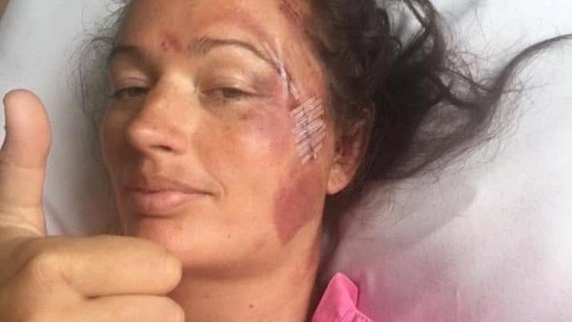Rebekah Crawford überlebte den Sturz von den Klippen an der Küste Cornwalls wie durch ein Wunder.