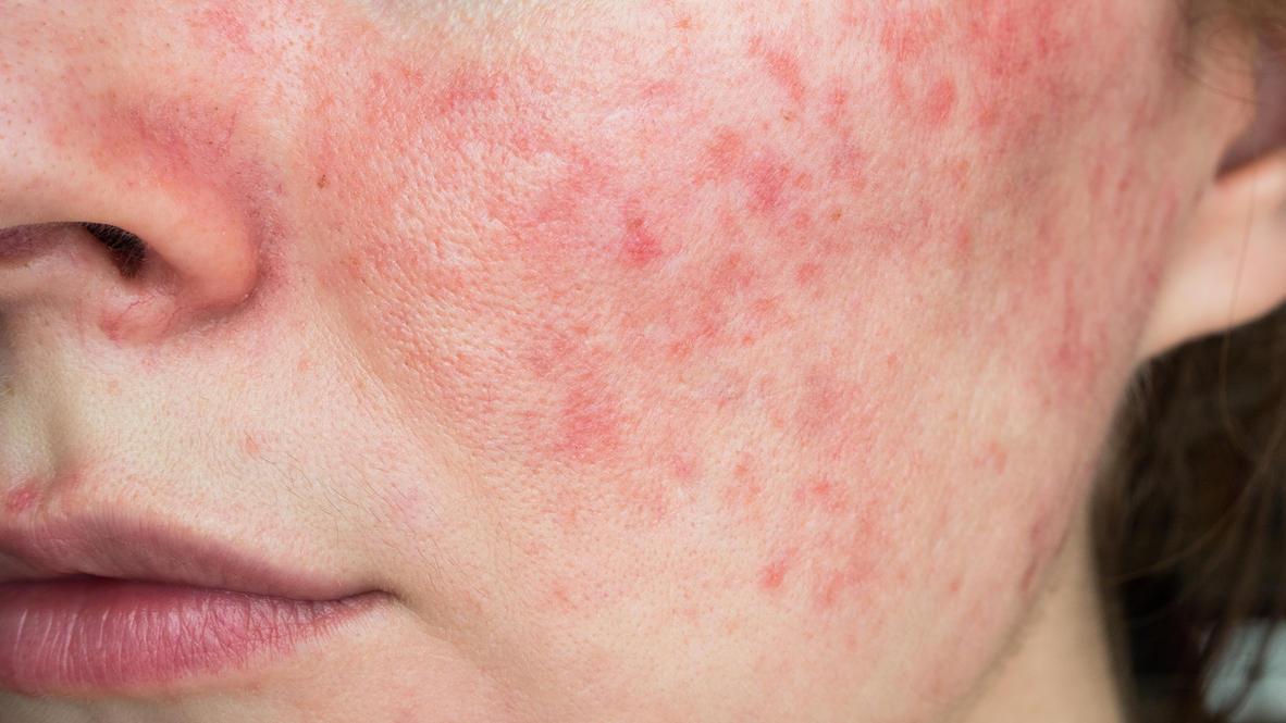 Rosazea äußert sich oft durch rote, fleckige Haut und Pusteln.