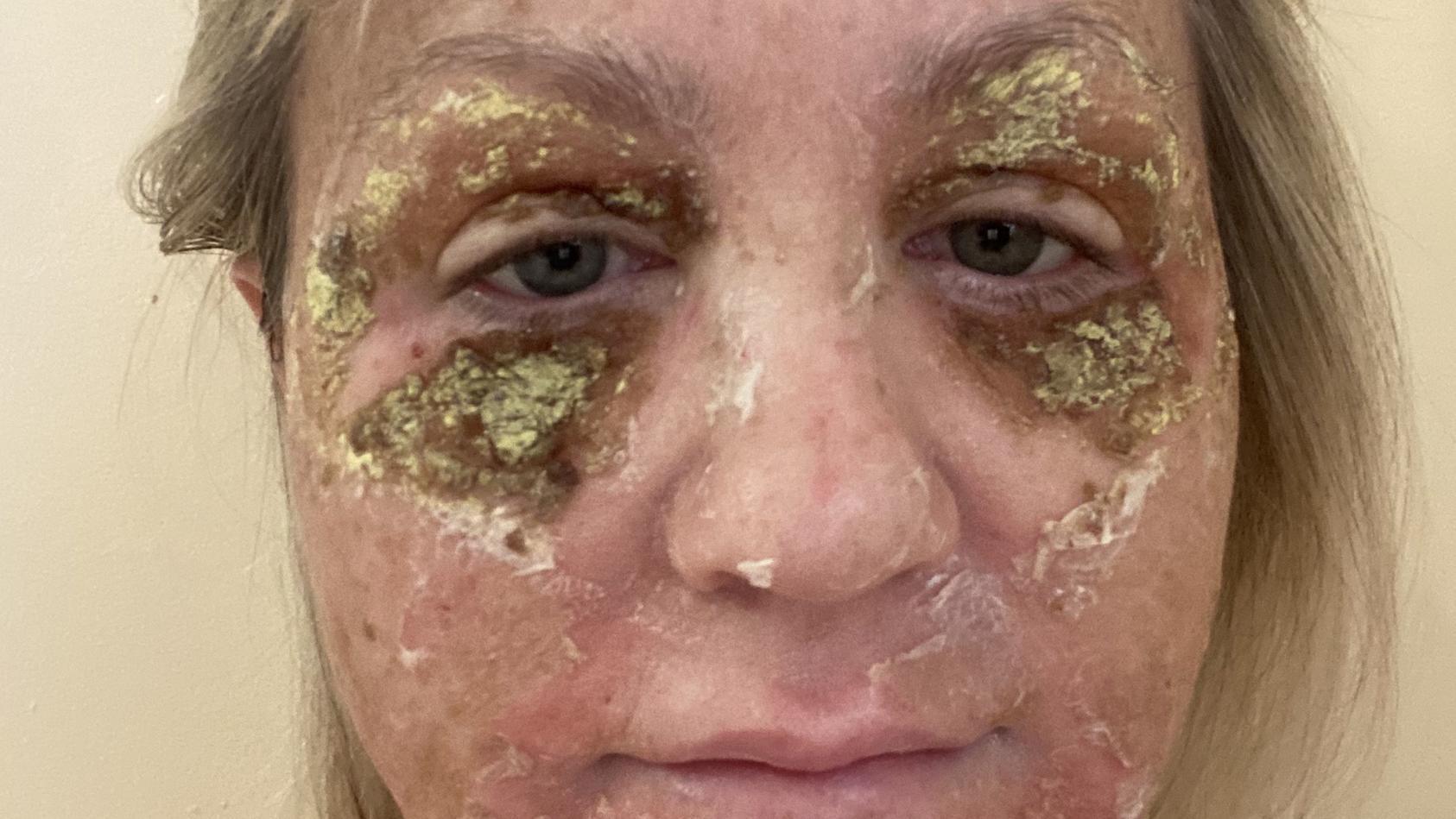 Amanda Watkins kurz nach ihrem chemischen Peeling. Ihre Haut schuppt sich vom Gesicht.