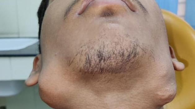 Sein Kiefer hat schon riesige Ausmaße angenommen. Nitish leidet an einem schlimmen Tumor und hat 82 statt 32 Zähne im Mund!