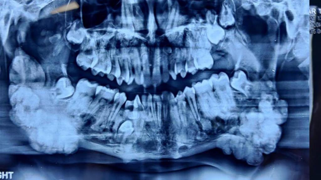 Se puede ver claramente en la radiografía de Nitich;  Tiene muchos dientes en la mandíbula.