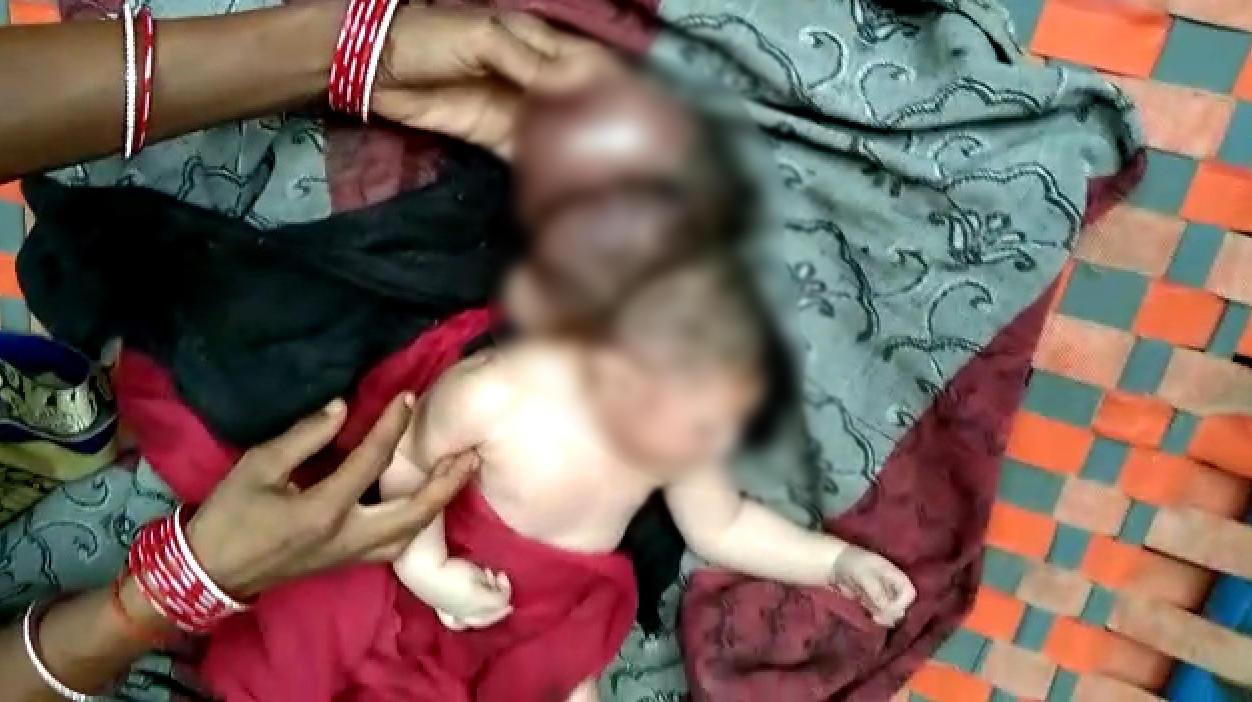Eine Frau bringt ein Baby auf die Welt, das aussieht als hätte es drei Köpfe. Was dahinter steckt.