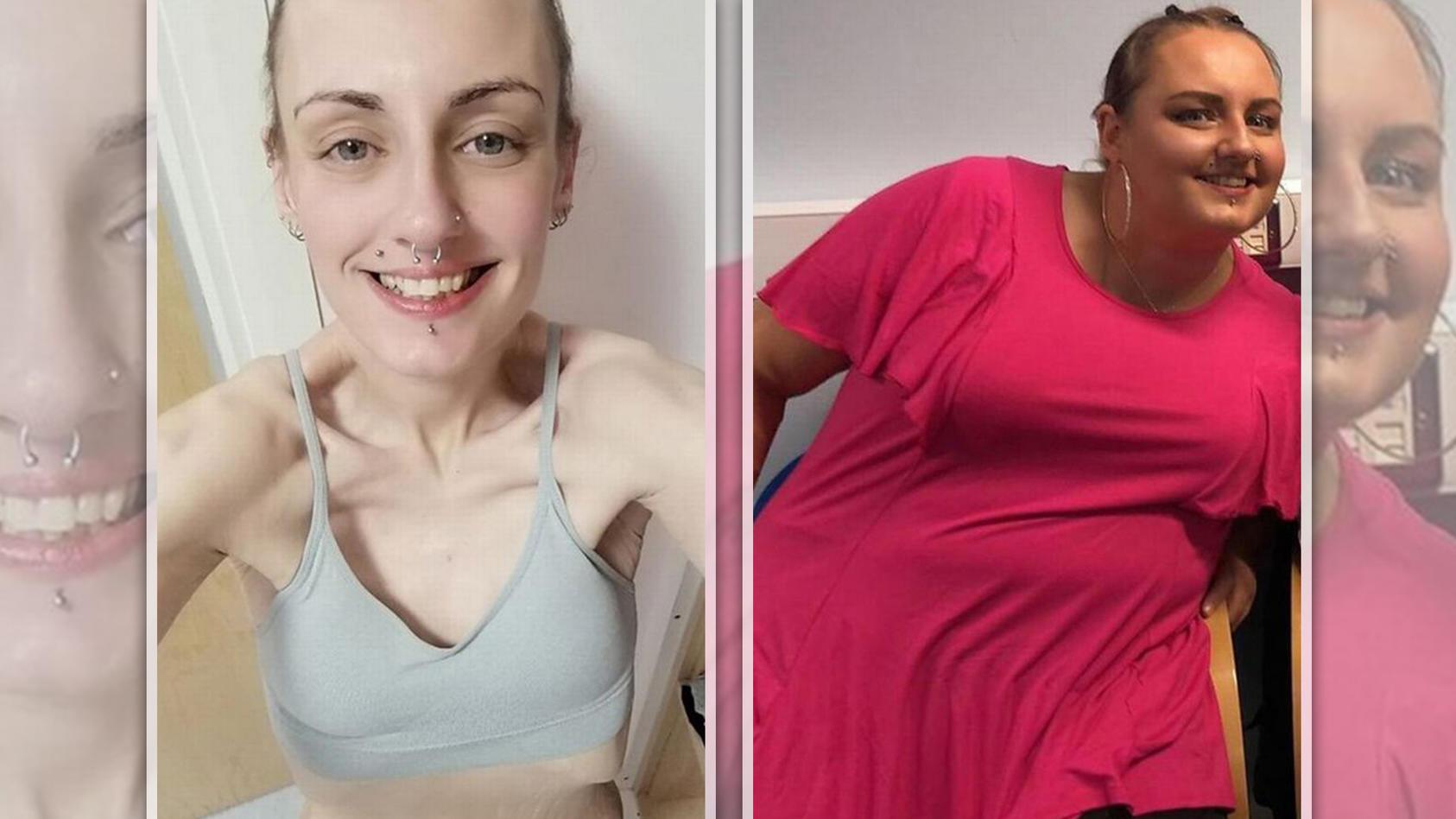 So (links) sieht Natalie nach einer 15-monatigen Diät aus. Sie wiegt nur noch 47 Kilo. Während dieser Diät ernährt sie sich nur von Abführmittel und Cola. Vorher (rechts) wog sie um die 120 Kilo.